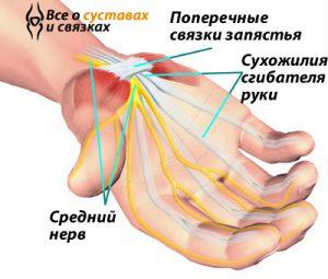 Sindrom-zapjastnogo-kanala-simptomy